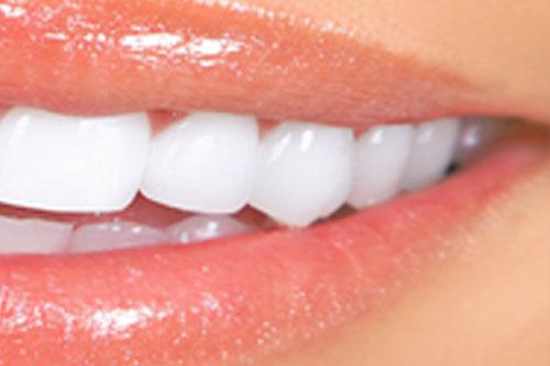 Leonidas Renuzza Clareamento Dentario