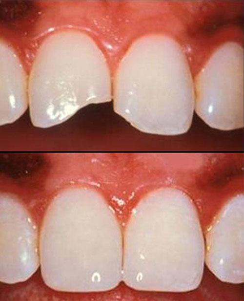 Leonidas Renuzza Odontologia Curitiba Restauracao Dentaria